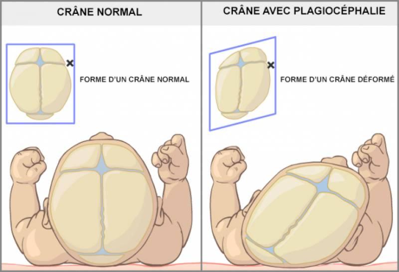 Osteopathe pédiatrique - plagiocéphalie du nouveau né, nourrisson - Marie Lanurien Osteopathe courbevoie la défense